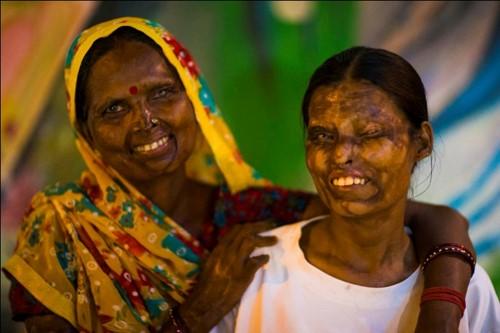 Acid victims